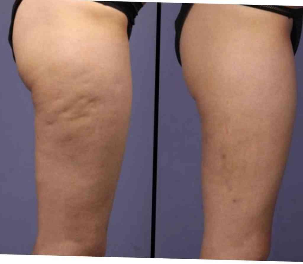 Cellulite RF Treatment Bethlehem Allentown - Azani Medical Spa