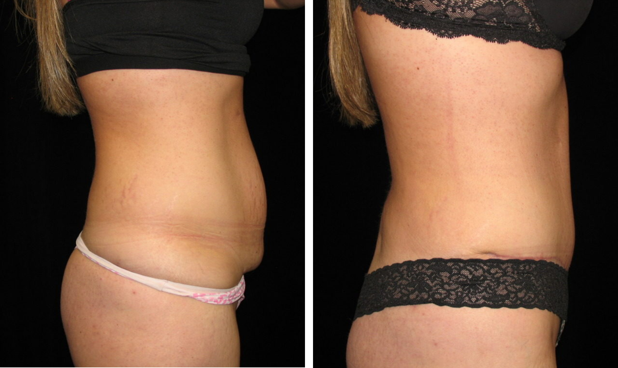 Azani Medical Spa Liposuction Before and After