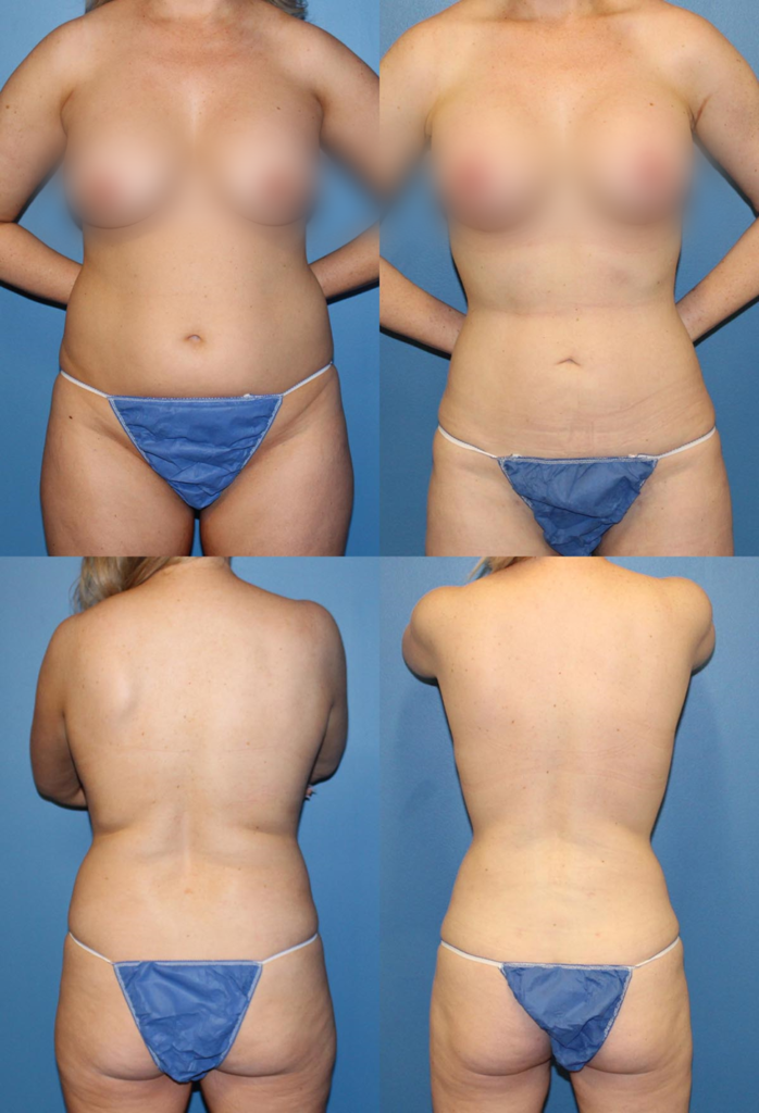 Before and After Liposuction Azani