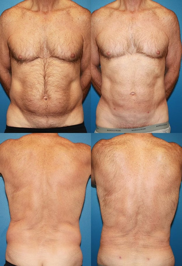 Before and After Liposuction Azani Medical Spa