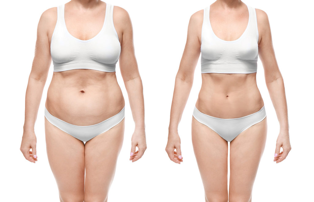 Liposuction Before and After Azani Medical Spa