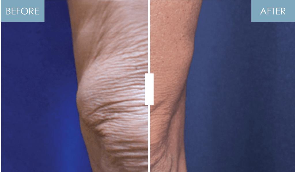 NuEra Skin Tightening by Azani Medical Spa Legs